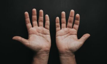 Ask the Ortho: What is Hand Therapy?